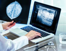Close up of Doctor reviewing mammography results on x-ray and typing results on laptop.